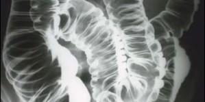 Clisma cu bariu – examenul radiologic cu bariu