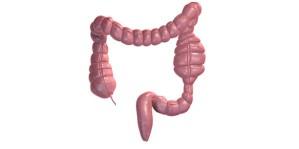 Ce este cancerul de colon?