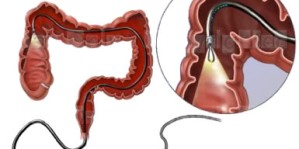 Colonoscopia cancer la colon – colonoscopia virtuala